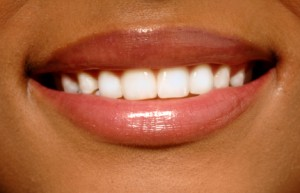 Can Bleaching or Whitening weaken Teeth?