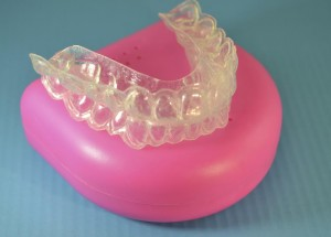Plastic braces to straighten teeth
