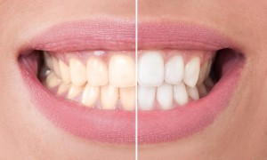 teeth whitening cosmetic dentistry