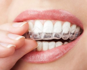 Invisalign braces keep you smiling