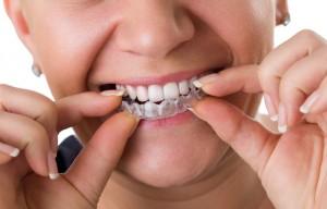 Best dentist Elkridge, Maryland