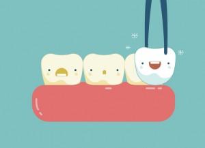 Veneers teeth of dental concept