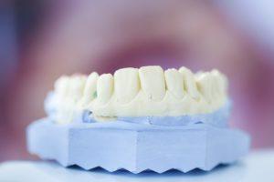 Dentures plastic mold