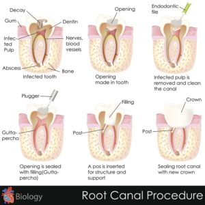 Root Canal Procedure Catonsville Dental Care