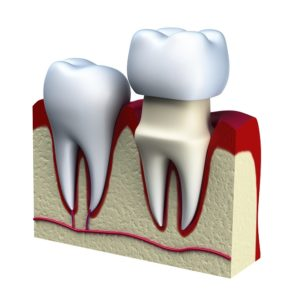 dental crowns Catonsville Dental Care