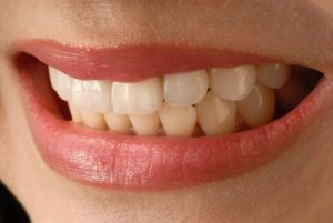 Porcelain Veneers Catonsville Dental Care