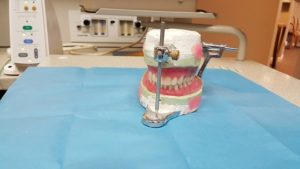 Dentures Catonsville Dental Care
