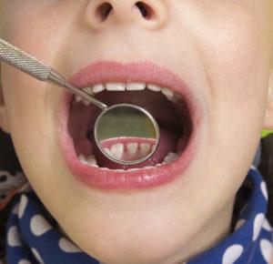 Children's Dentistry Catonsville Dental Care