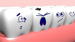 Solutions for Overcrowded Teeth
