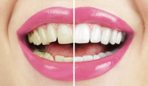Teeth Whitening Services Catonsville Dental Care