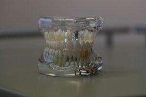 Dentures Catonsville Dental Care