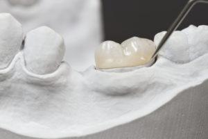 Crowns in Elkridge, MD Catonsville Dental Care
