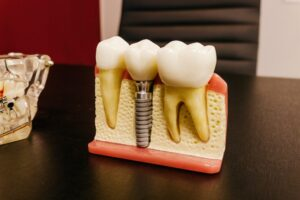 Columbia's Best Dentists for Dental Implants