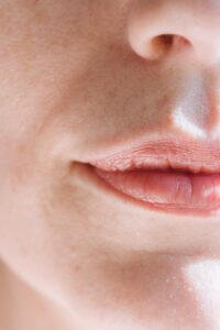 Lip Flips in Baltimore County: 3 Facts Catonsville Dental Care