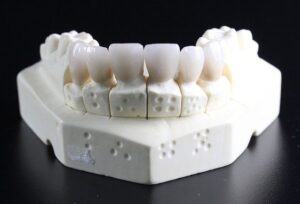 Partial and Complete Aesthetic Dentures in Columbia, MD